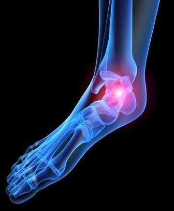 Trussville Podiatrist | Trussville Heel Pain/Fasciitis | AL | Alabama Medical & Surgical Foot Center |